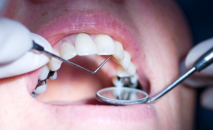 Важным условием лечения вазомоторного ринита является лечение больных зубов