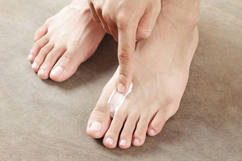 Самые эффективные способы лечения ногтевого грибка на ногах