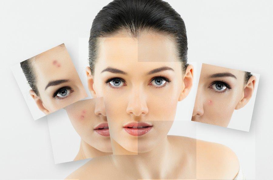 Лечение подкожного клеща на лице