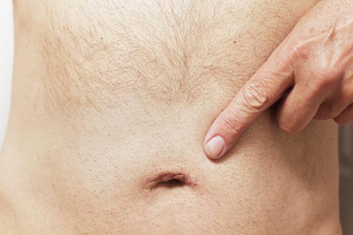 Осложнения и последствия пупочной грыжи для здоровья