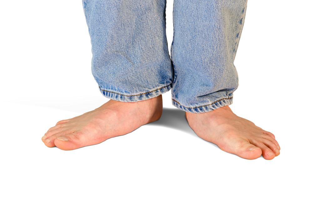Поперечное плоскостопие: симптомы и лечение