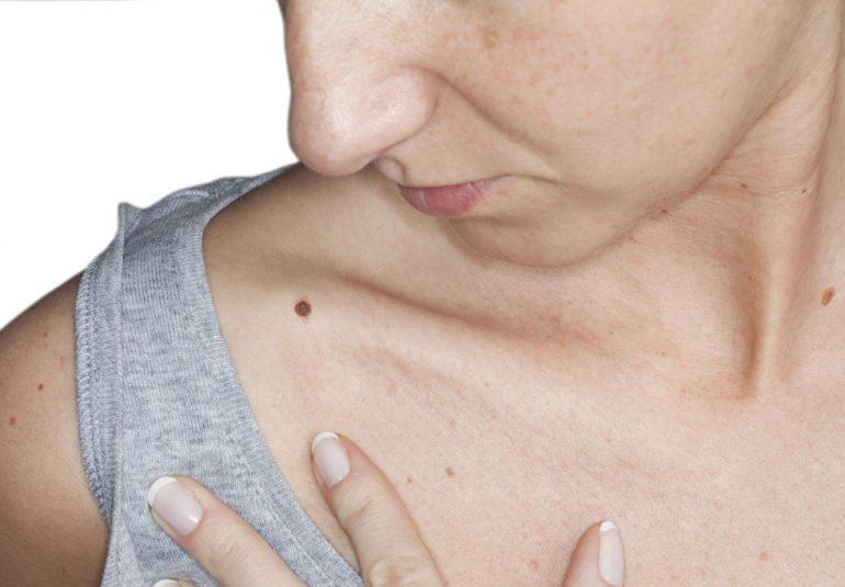 Рак кожи: симптомы и признаки