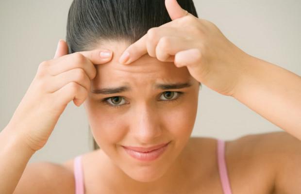 Лечение акне у подростков