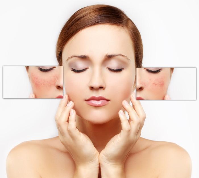 Купероз на лице: лечение, отзывы 2