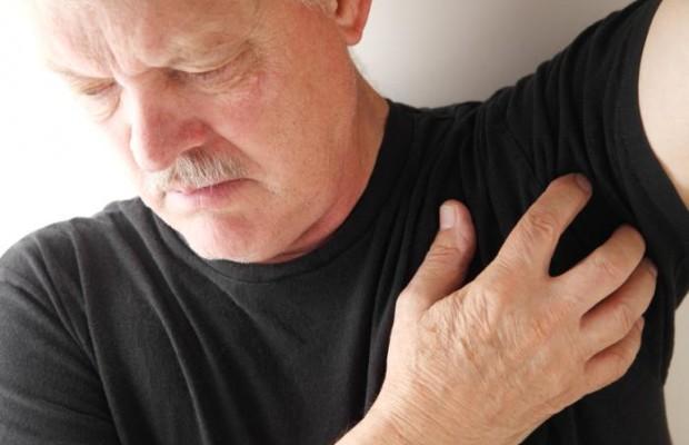 Чесотка: симптомы, лечение в домашних условиях