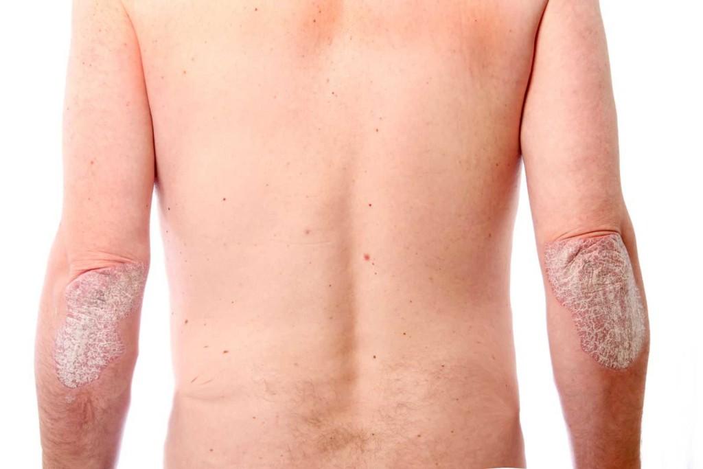 Псориаз на теле: симптомы и лечение 2