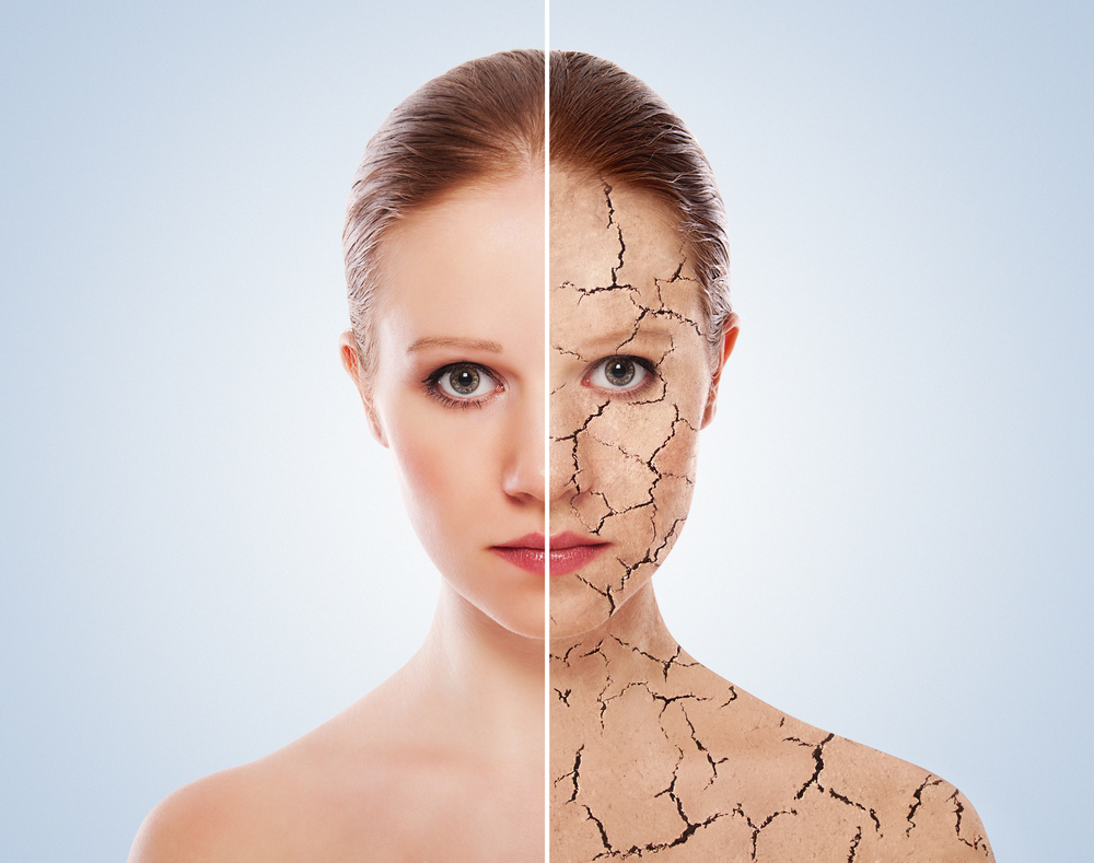 Псориаз на теле: симптомы и лечение