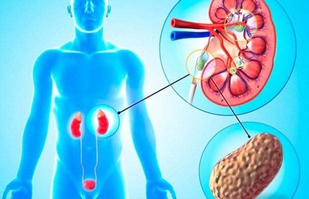 Почечные колики: симптомы у мужчин, лечение