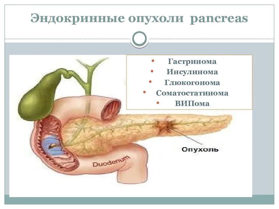 Эндокринные опухоли поджелудочной железы